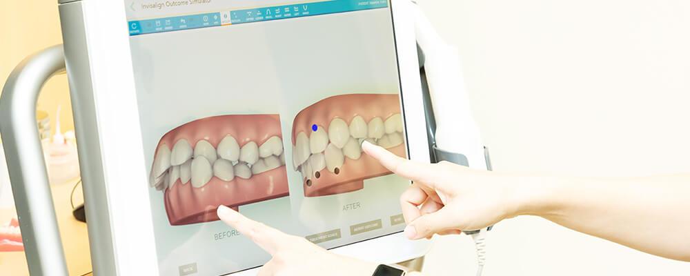最新のスキャナーiTeroで治療後のシュミレーション画像が確認できます