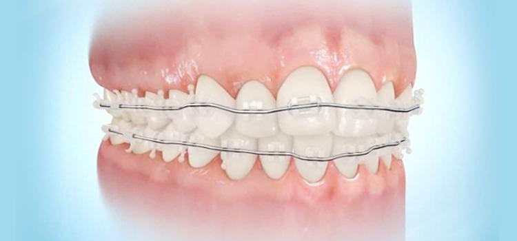前歯の部分矯正2つの治療方法
