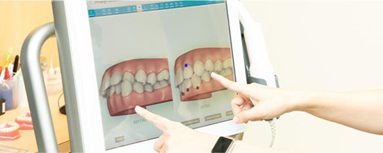 シミュレーション画像と治療計画の提示