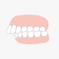 出っ歯・前歯の矯正