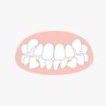 叢生(そうせい) 八重歯の矯正