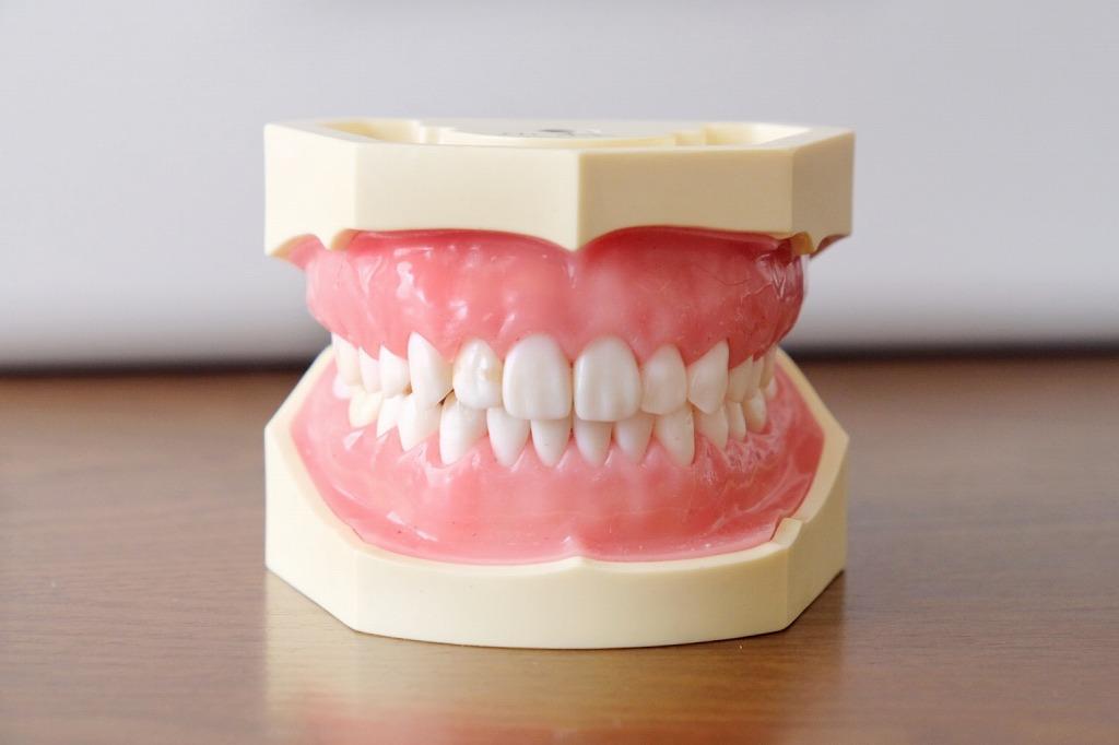 抜歯症例でもマウスピース矯正(インビザライン)が可能